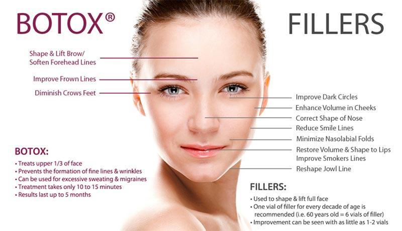 Botox Fillers