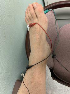 EMG – Electromyography 1