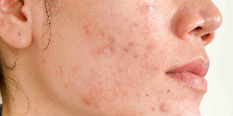 Do Acne Scar Treatments Actually Work?